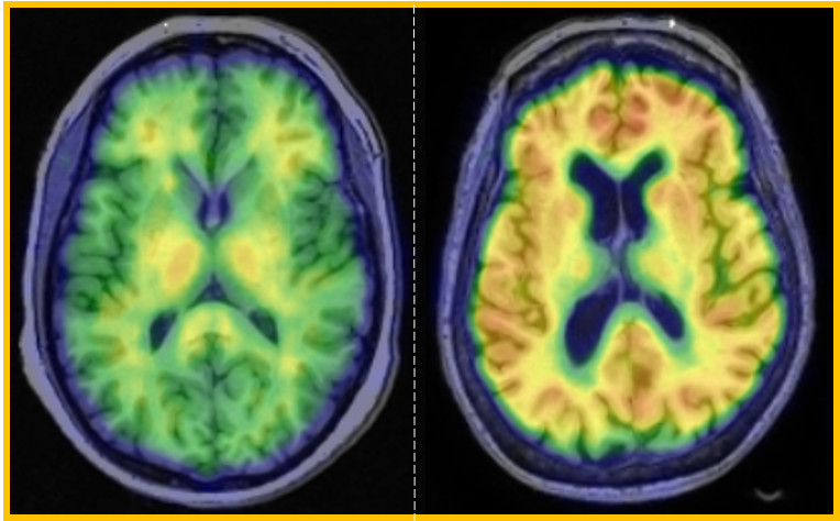 A scan of the brain