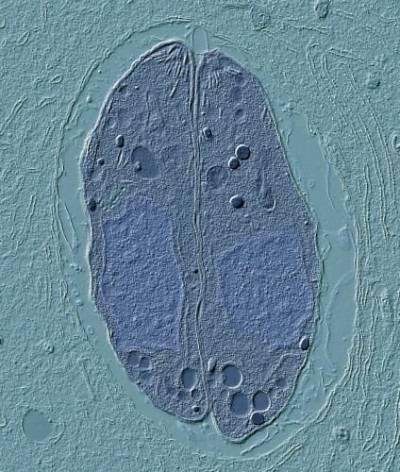 Microscopic image of Toxoplasma gondii