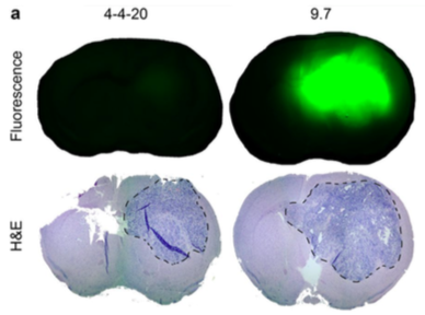 Image of glioblastoma bio-panning research in John Kuo's lab at the University of Wisconsin
