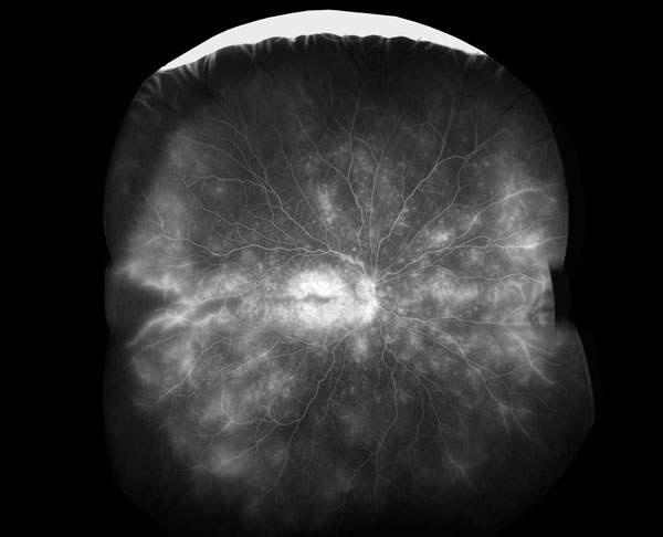 Photo of the retina